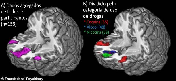 Partes ativadas no cérebro