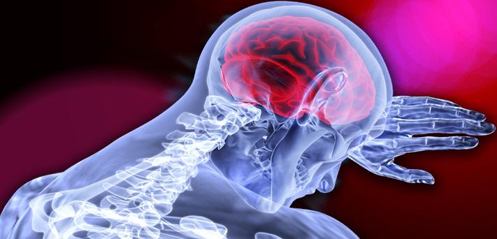 A EMTr melhora significativamente a depressão pós-AVC